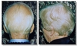 Is There A Natural Way To Treat Alopecia