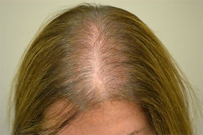 underactive thryoid caused hair loss