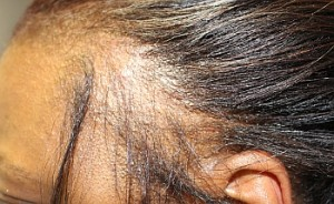 natural treatment for frontal alopecia