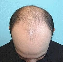 Eucaderms hair loss clinic using natural treatments