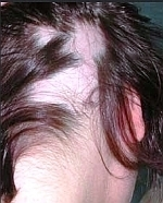 best hair loss natural treatments